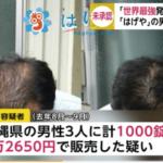 「はげや」の江口泰司容疑者の顔画像。危ない薬!?女性化やムクミの例も…